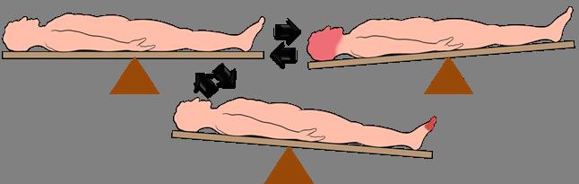 Физическая нагрузка при варикозе